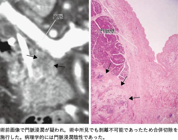 図1 門脈合併切除症例