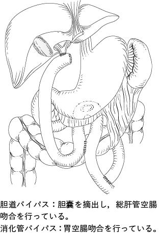 図1 胆道・消化管バイパス術の1 例