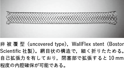 図2 自己拡張型メタリックステント(uncovered SEMS)