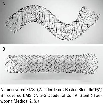 図1 消化管自己拡張型メタリックステント(EMS)の例