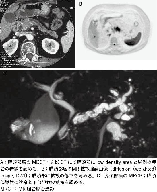 図1 膵癌の診断における検査法